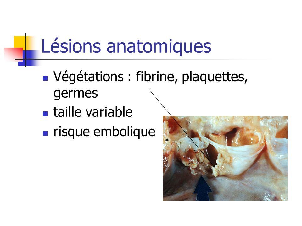 Lésions anatomiques Végétations : fibrine, plaquettes, germes