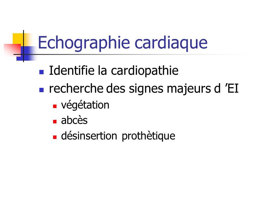 Echographie cardiaque