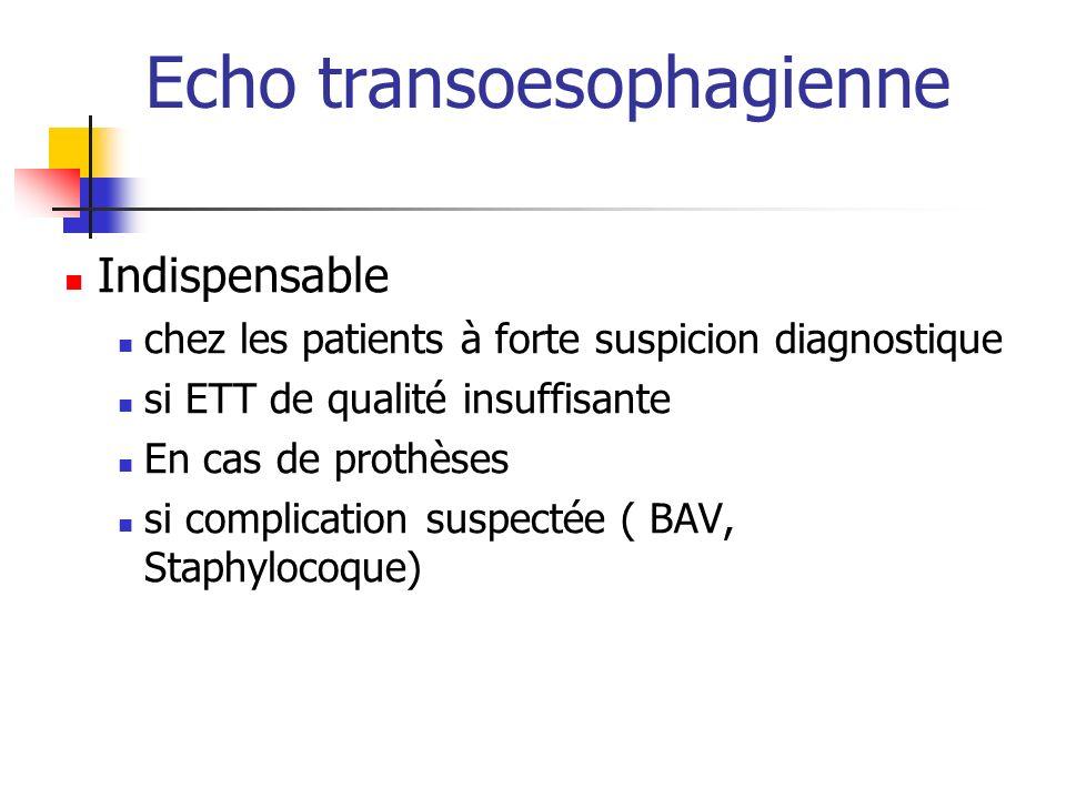 Echo transoesophagienne