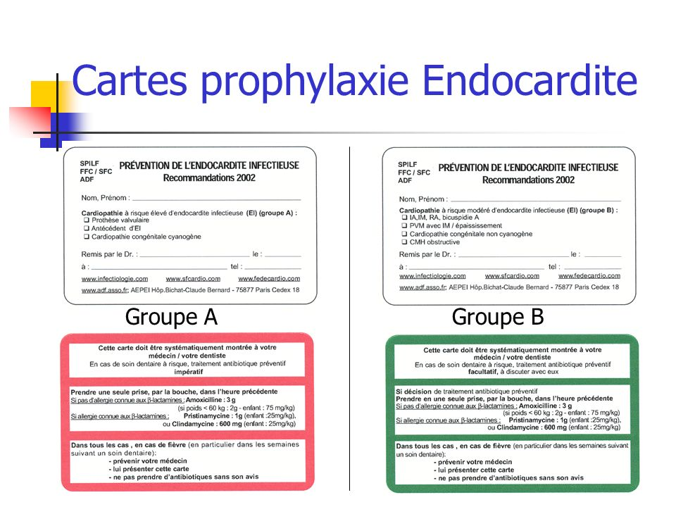 Cartes prophylaxie Endocardite