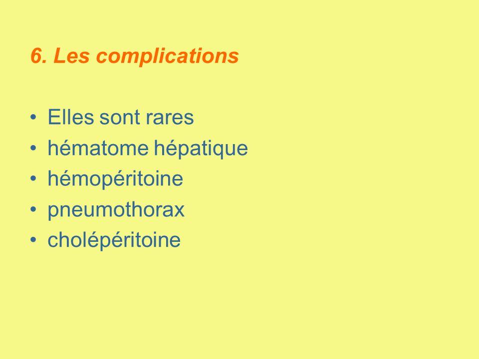 6. Les complications Elles sont rares hématome hépatique hémopéritoine pneumothorax cholépéritoine