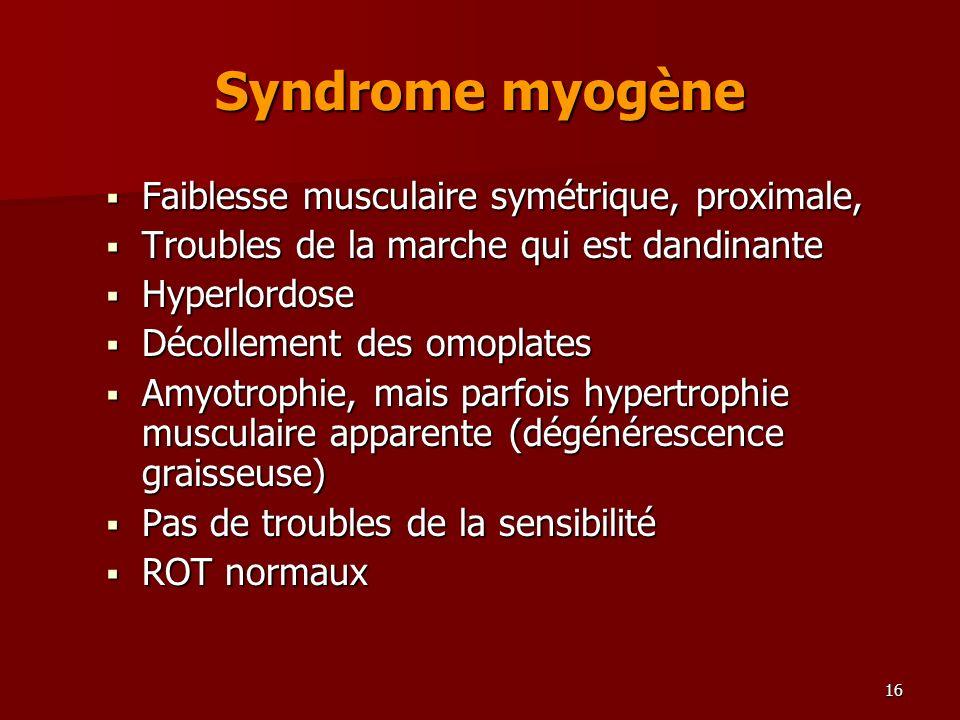 Syndrome myogène Faiblesse musculaire symétrique, proximale,
