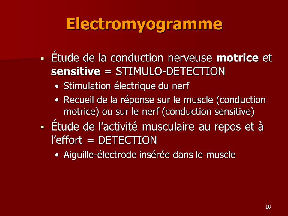 Electromyogramme Étude de la conduction nerveuse motrice et sensitive = STIMULO-DETECTION. Stimulation électrique du nerf.