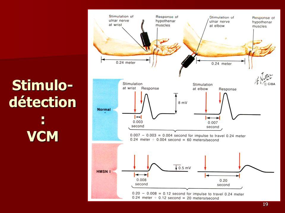 Stimulo-détection: VCM