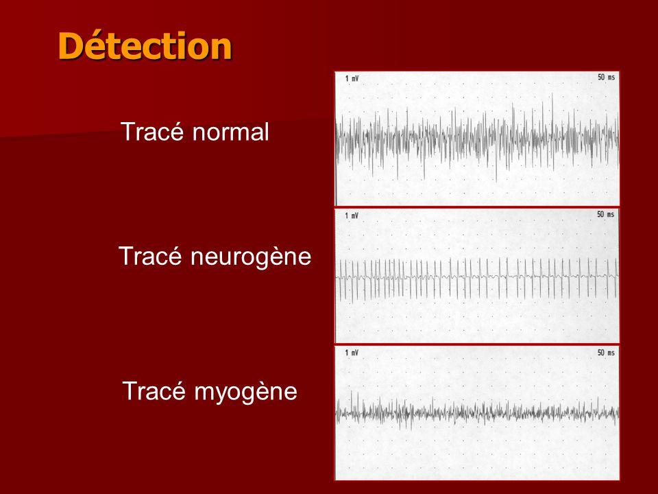 Détection Tracé normal Tracé neurogène Tracé myogène