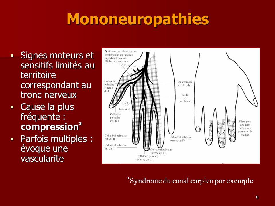Mononeuropathies Signes moteurs et sensitifs limités au territoire correspondant au tronc nerveux. Cause la plus fréquente : compression*