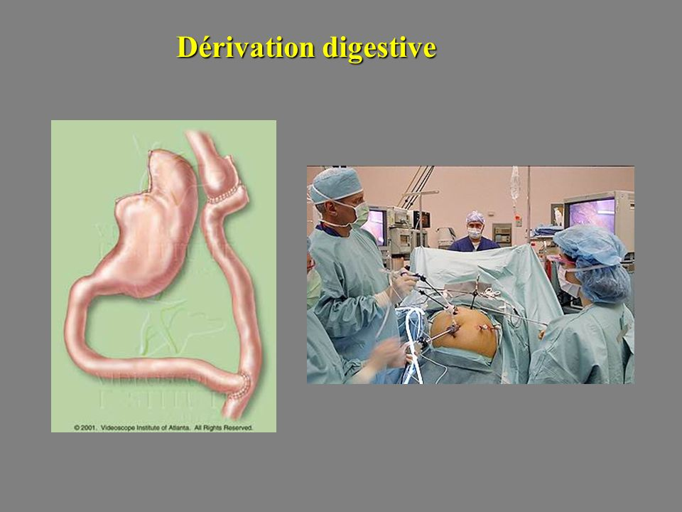 Dérivation digestive