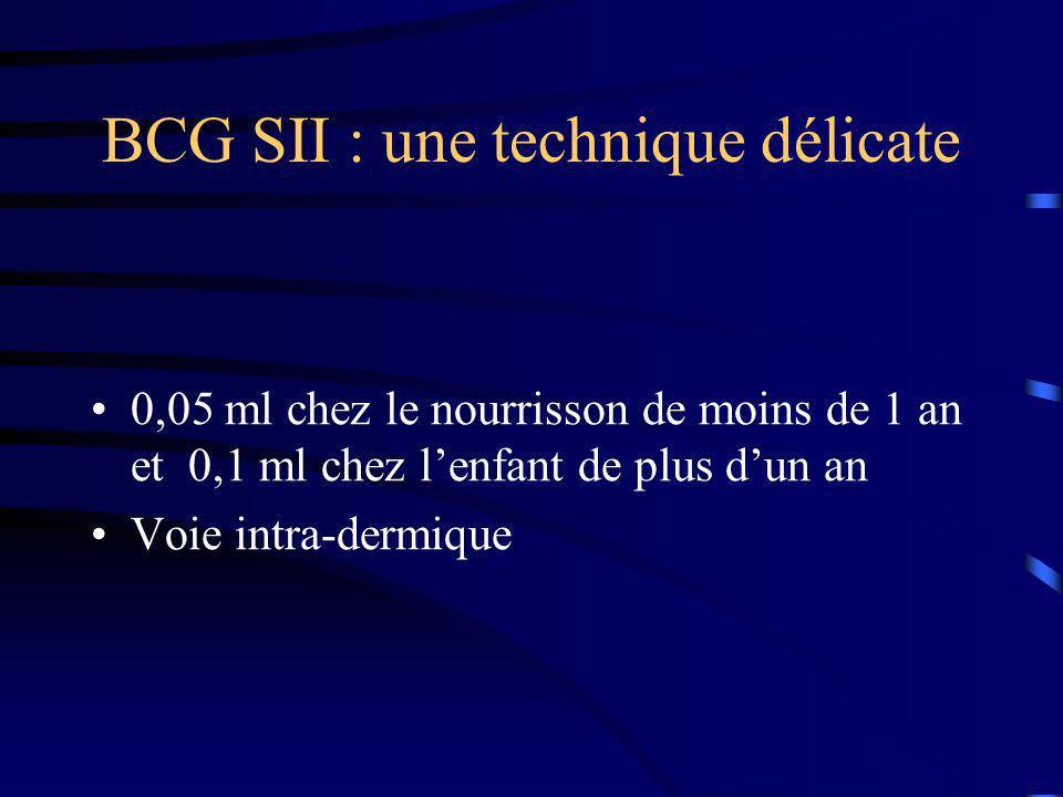 BCG SII : une technique délicate