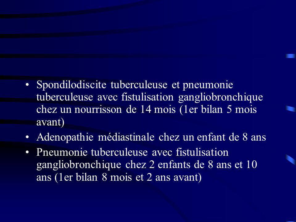 Spondilodiscite tuberculeuse et pneumonie tuberculeuse avec fistulisation gangliobronchique chez un nourrisson de 14 mois (1er bilan 5 mois avant)