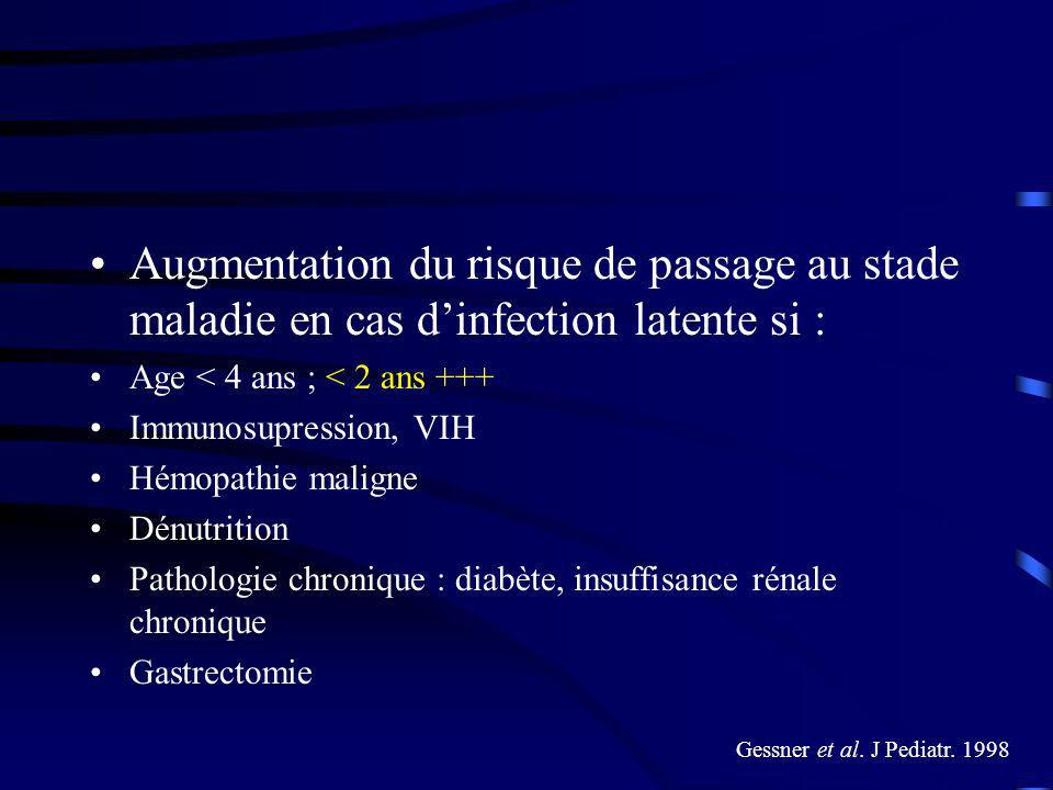 Augmentation du risque de passage au stade maladie en cas d'infection latente si :