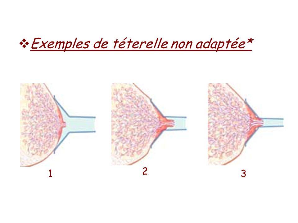 Exemples de téterelle non adaptée*