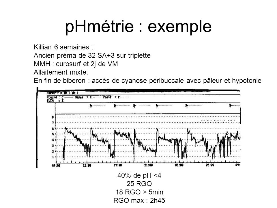 pHmétrie : exemple Killian 6 semaines :