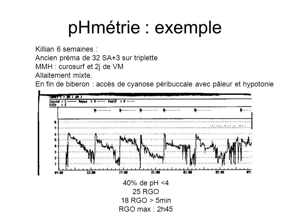 pHmétrie : exemple Killian 6 semaines :