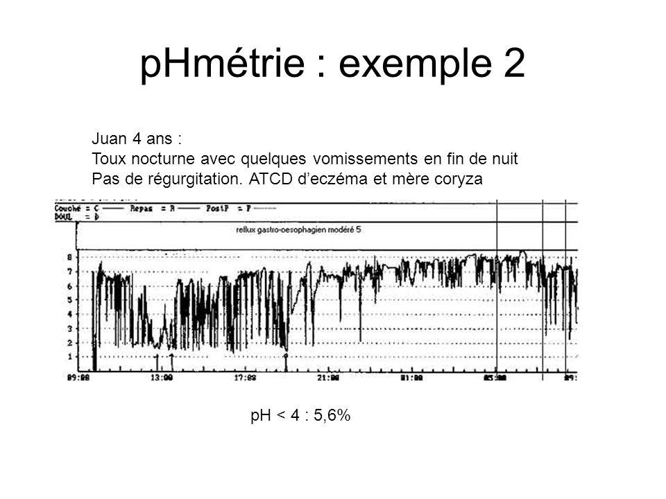 pHmétrie : exemple 2 Juan 4 ans :