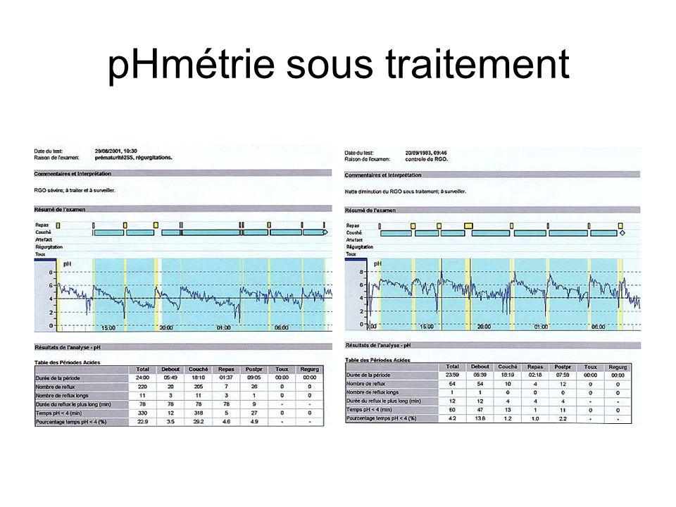 pHmétrie sous traitement