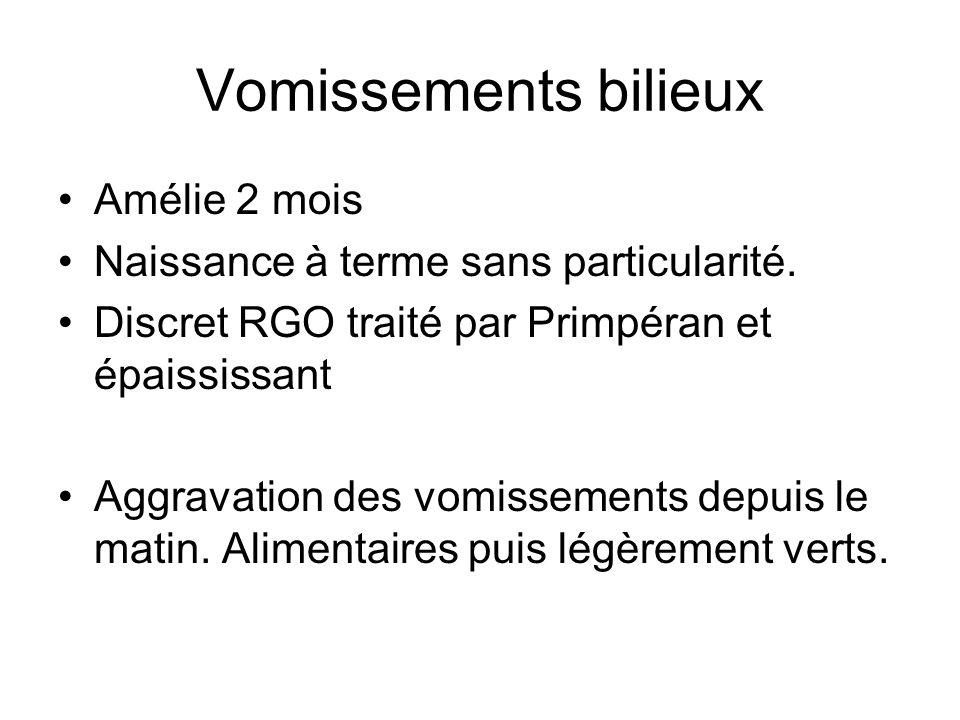 Vomissements bilieux Amélie 2 mois