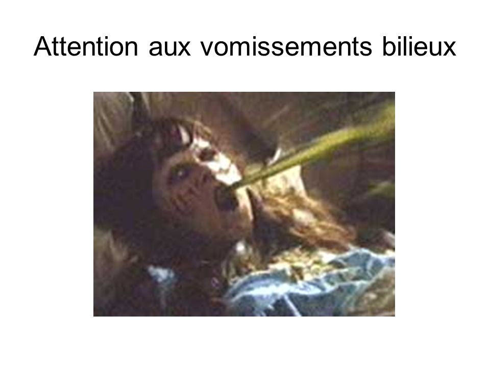 Attention aux vomissements bilieux