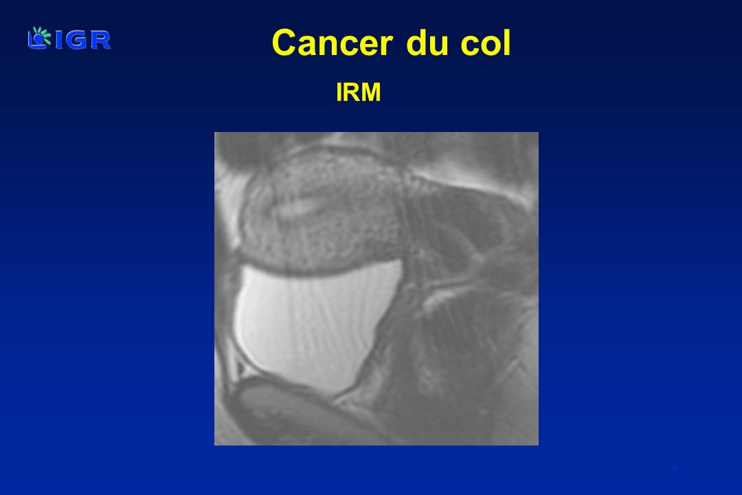Cancer du col IRM