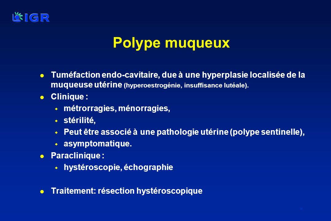 Polype muqueux Tuméfaction endo-cavitaire, due à une hyperplasie localisée de la muqueuse utérine (hyperoestrogénie, insuffisance lutéale).