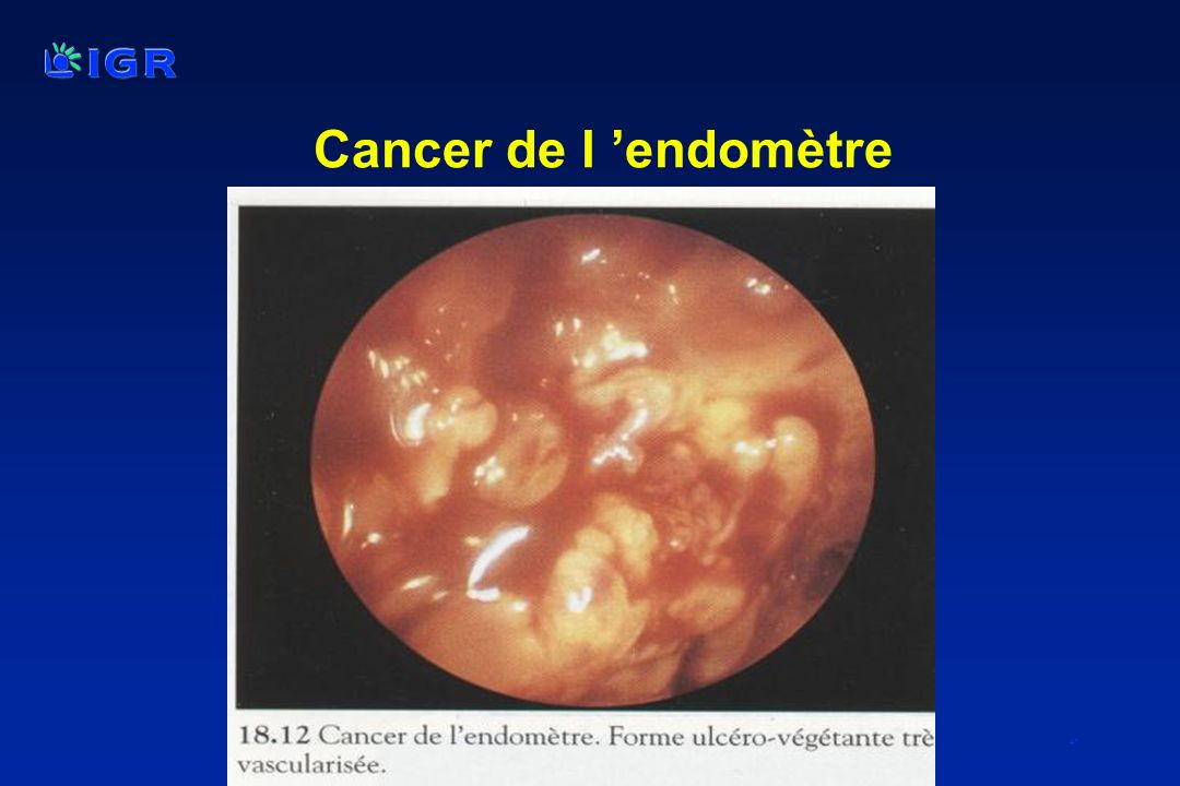 Cancer de l 'endomètre