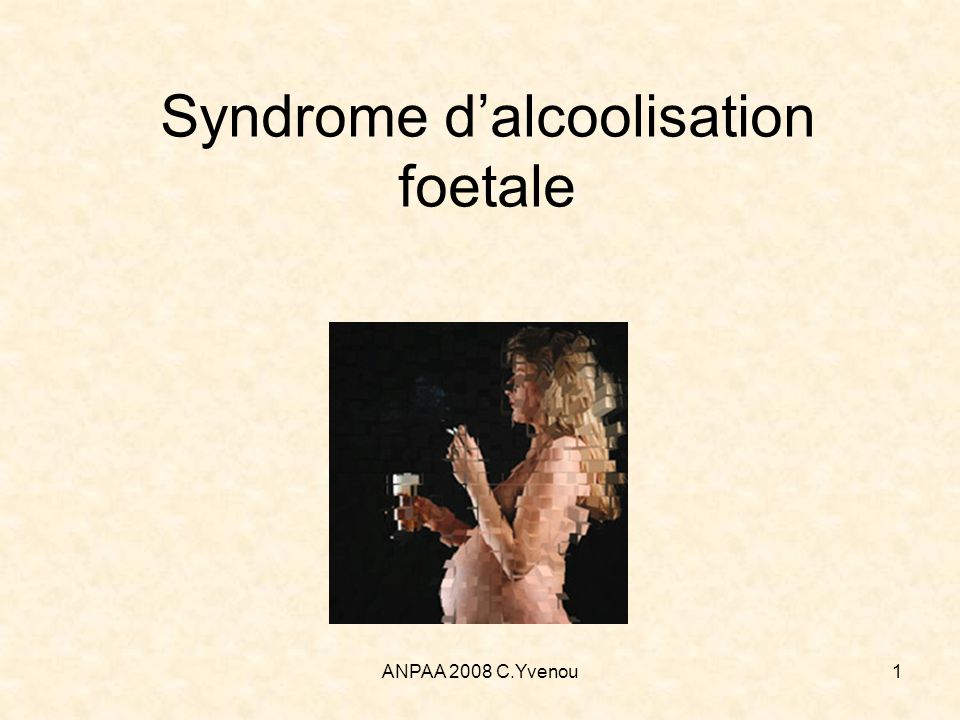 Syndrome d'alcoolisation foetale