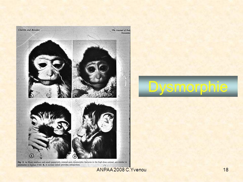 Dysmorphie ANPAA 2008 C.Yvenou