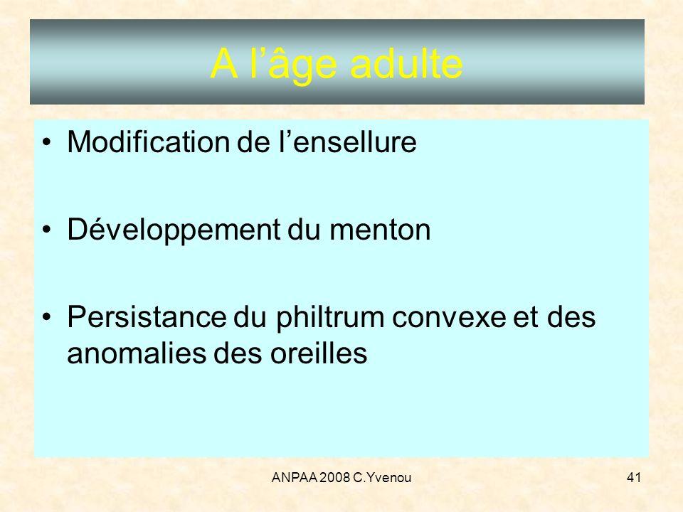 A l'âge adulte Modification de l'ensellure Développement du menton