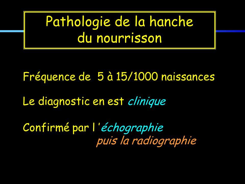 Pathologie de la hanche