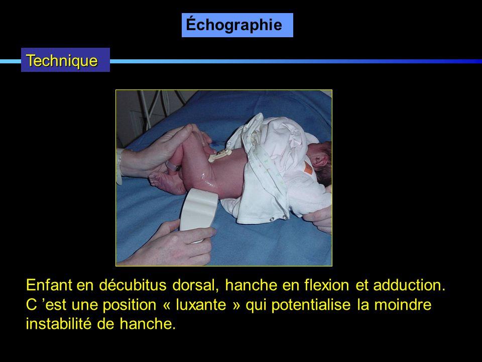 Échographie Technique. Enfant en décubitus dorsal, hanche en flexion et adduction. C 'est une position « luxante » qui potentialise la moindre.