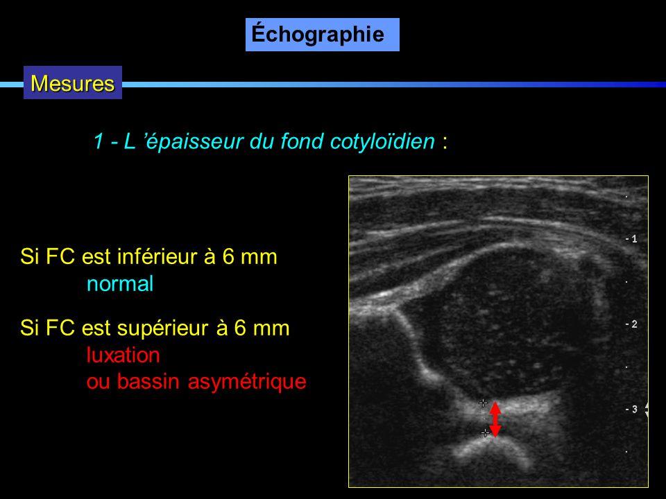 ÉchographieMesures. 1 - L 'épaisseur du fond cotyloïdien : Si FC est inférieur à 6 mm. normal. Si FC est supérieur à 6 mm.