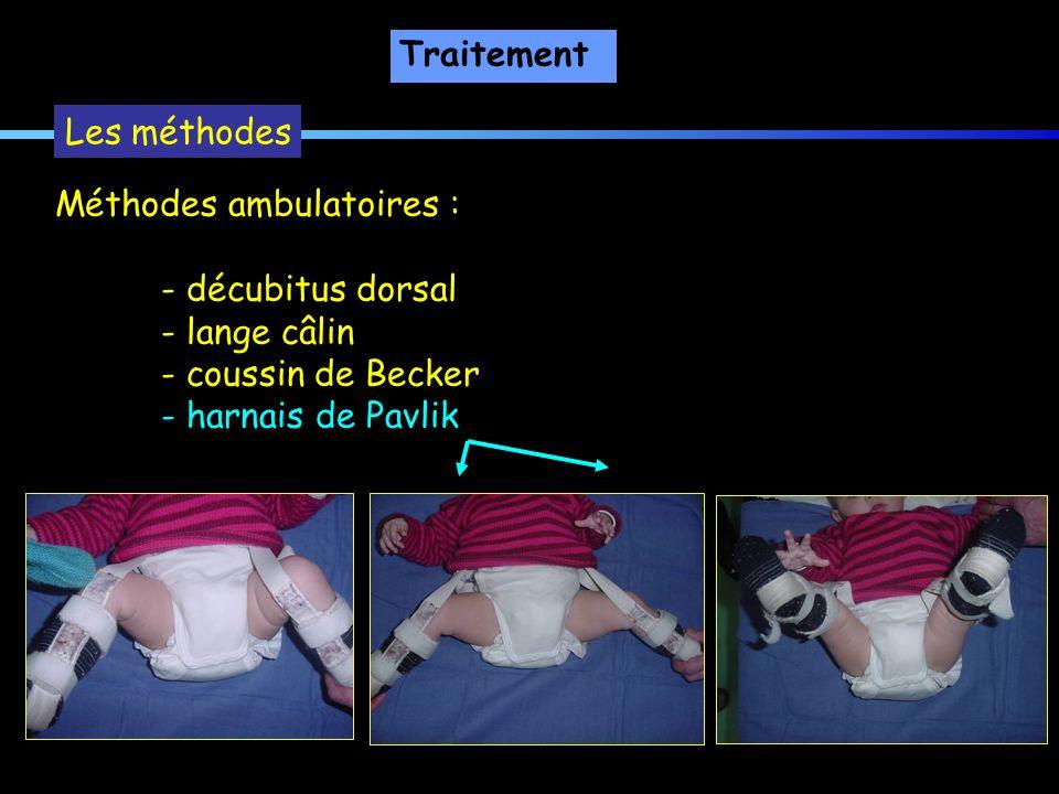 Traitement Les méthodes. Méthodes ambulatoires : - décubitus dorsal. - lange câlin. - coussin de Becker.