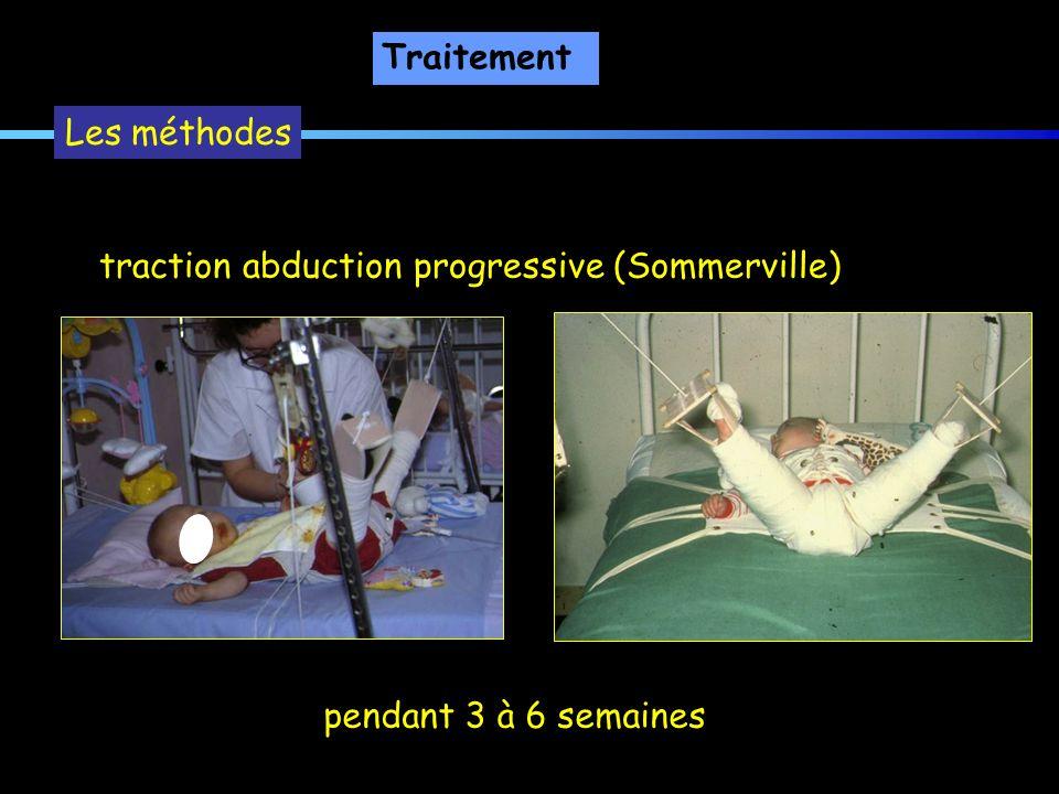 Traitement Les méthodes traction abduction progressive (Sommerville) pendant 3 à 6 semaines