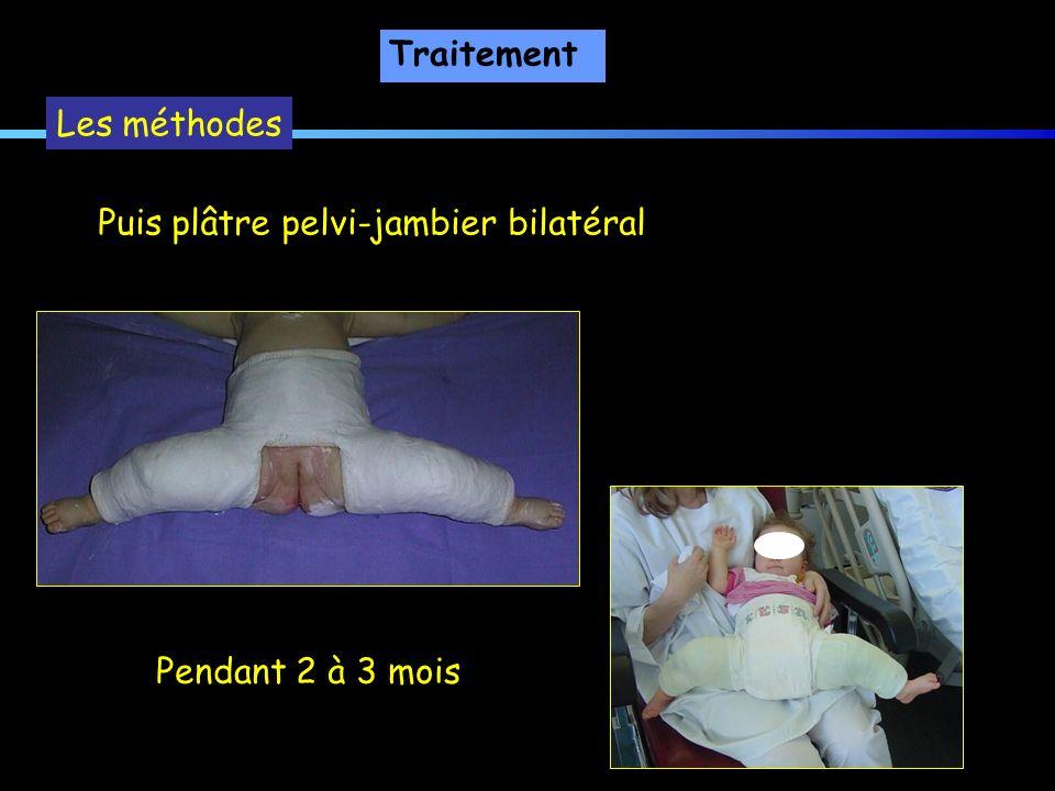 Traitement Les méthodes Puis plâtre pelvi-jambier bilatéral Pendant 2 à 3 mois