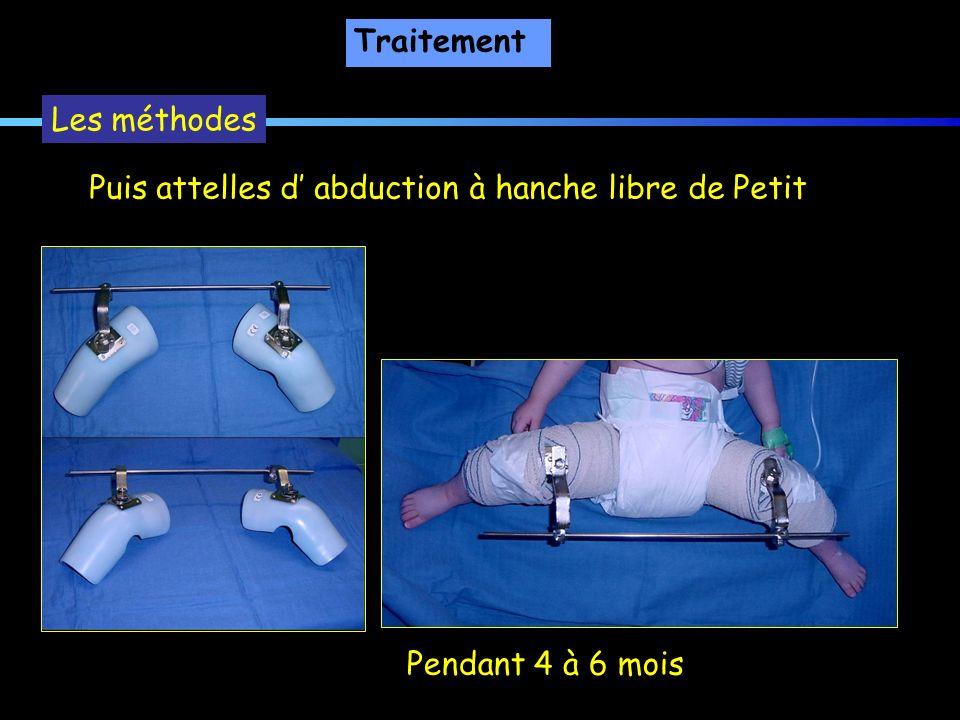 Traitement Les méthodes Puis attelles d' abduction à hanche libre de Petit Pendant 4 à 6 mois