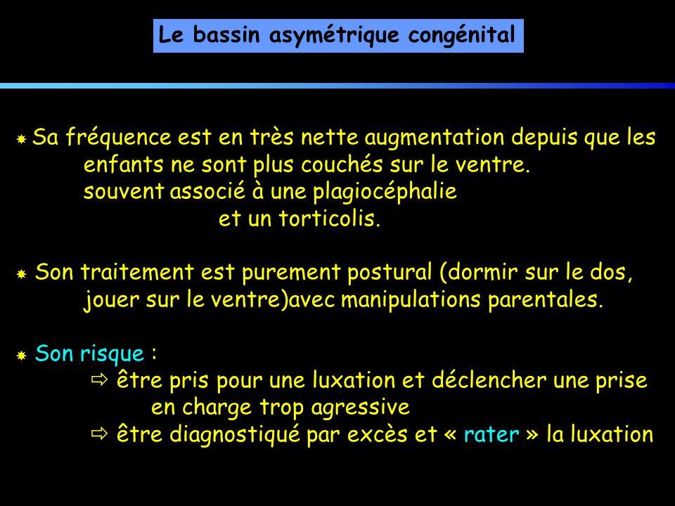 Le bassin asymétrique congénital