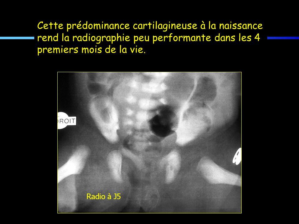Cette prédominance cartilagineuse à la naissance