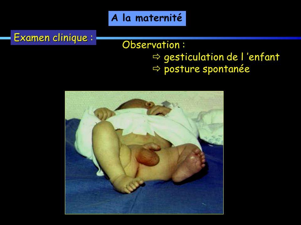 A la maternité Examen clinique : Observation :  gesticulation de l 'enfant  posture spontanée