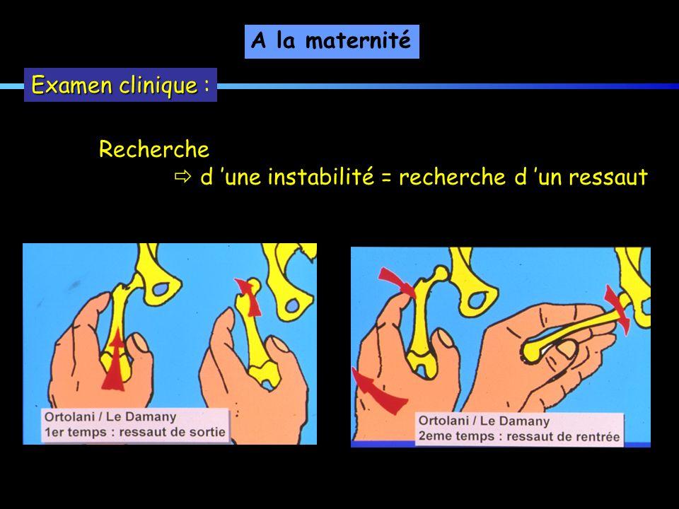 A la maternité Examen clinique : Recherche  d 'une instabilité = recherche d 'un ressaut