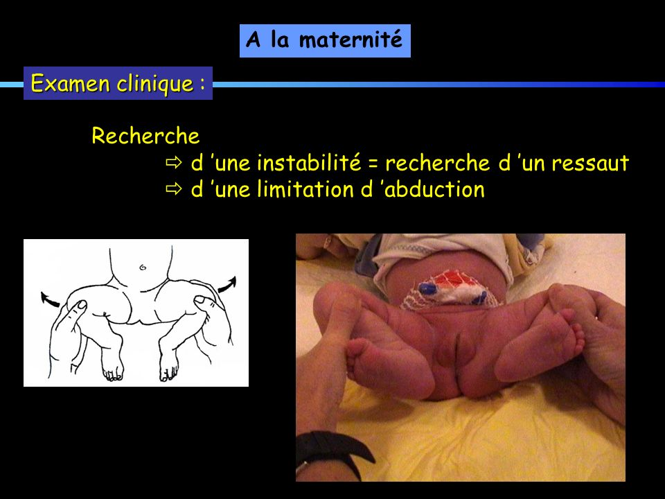 A la maternité Examen clinique : Recherche.  d 'une instabilité = recherche d 'un ressaut.