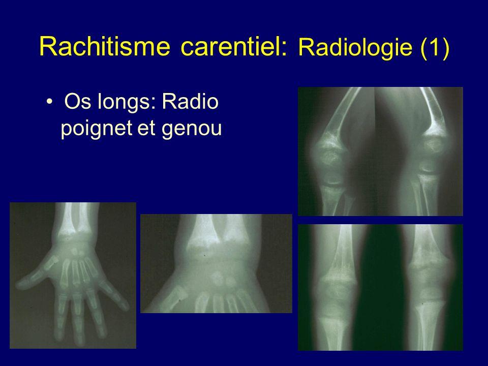 Rachitisme carentiel: Radiologie (1)