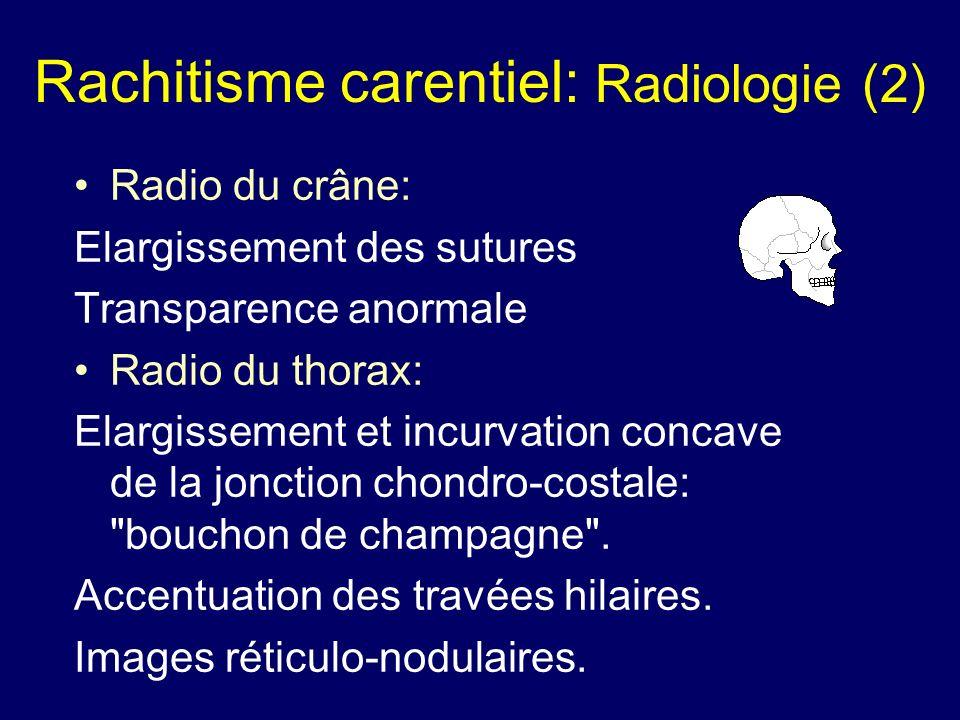 Rachitisme carentiel: Radiologie (2)