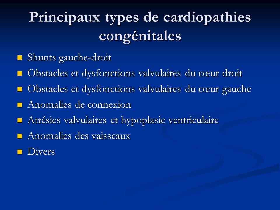 Principaux types de cardiopathies congénitales