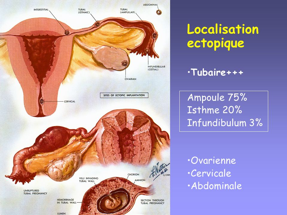 Localisation ectopique