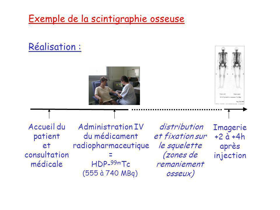 Exemple de la scintigraphie osseuse