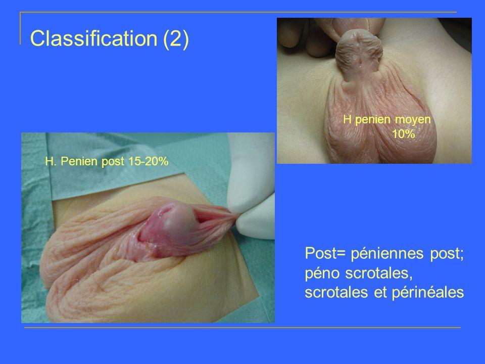 Classification (2) H penien moyen. 10% H.