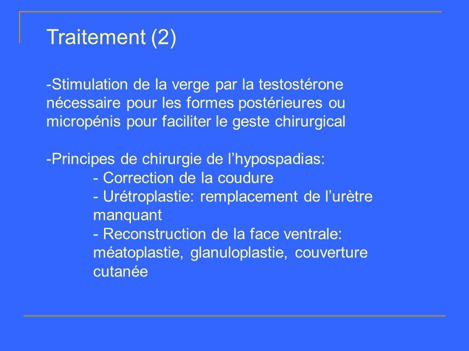 Traitement (2)Stimulation de la verge par la testostérone nécessaire pour les formes postérieures ou micropénis pour faciliter le geste chirurgical.