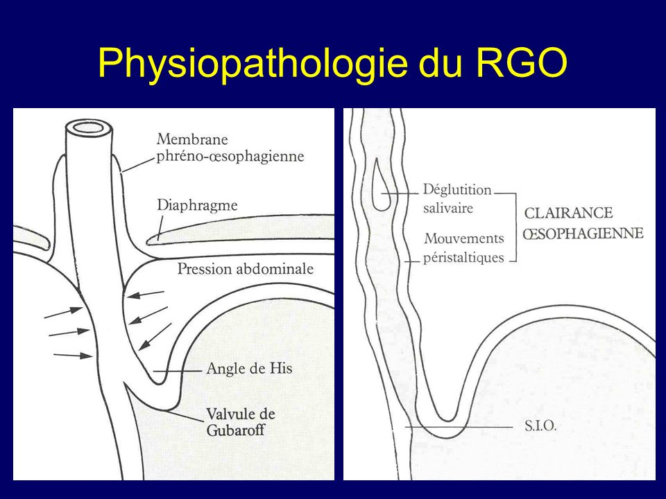 Physiopathologie du RGO