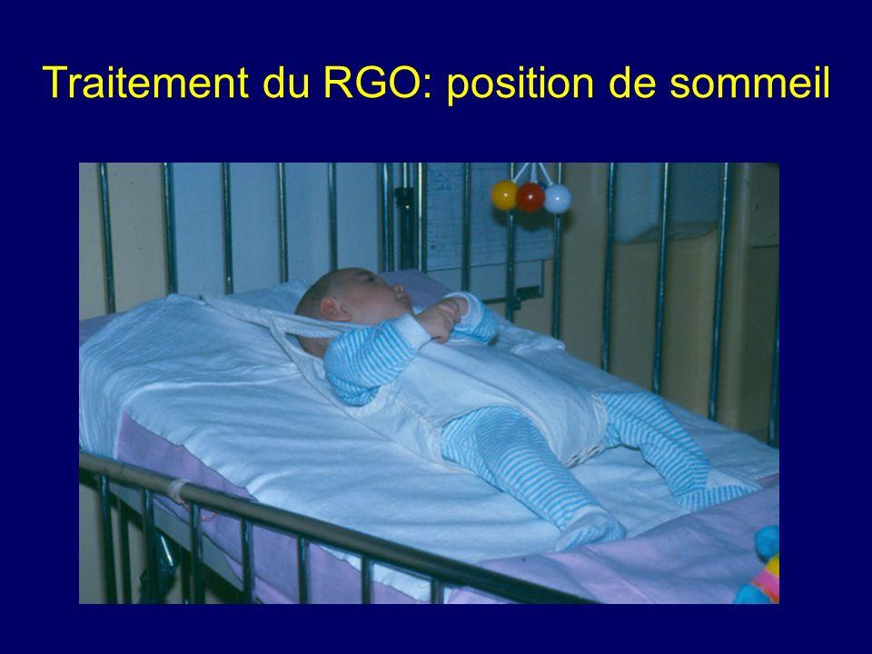 Traitement du RGO: position de sommeil