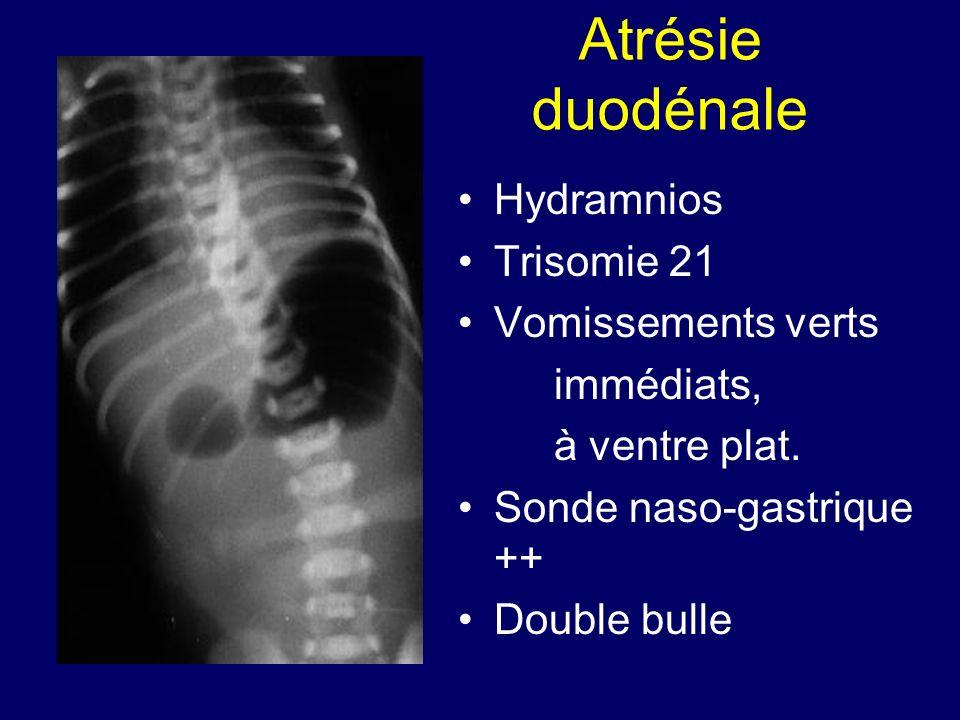 Atrésie duodénale Hydramnios Trisomie 21 Vomissements verts immédiats,