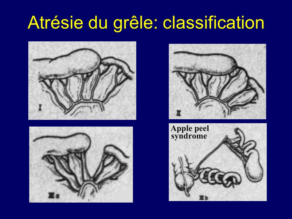 Atrésie du grêle: classification
